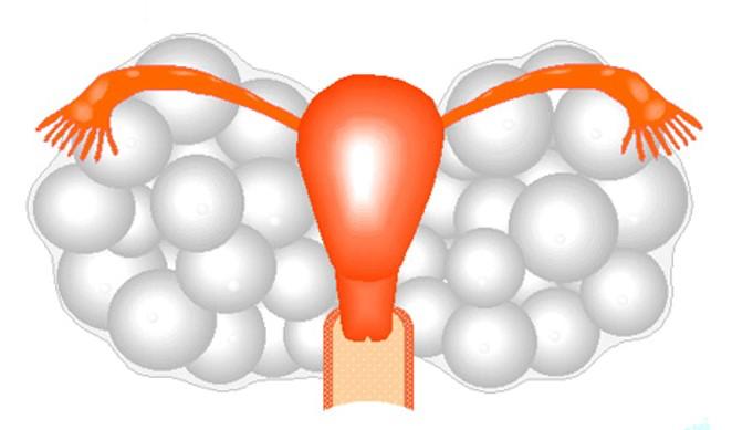 腫れている卵巣