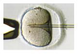 2.細胞質を吸引し膜を破る