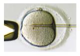 3.精子の注入