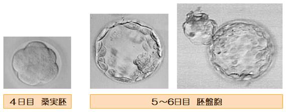 胚の発育2