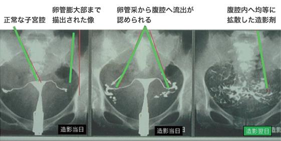 子宮卵管造影(HSG)