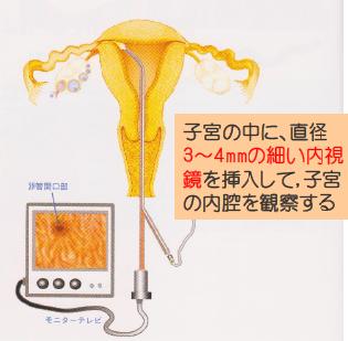 子宮鏡検査(月経以外の時期)