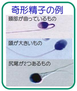 精液検査で診断できる男性不妊症