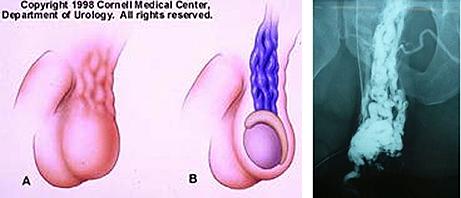 精索静脈瘤(低位結紮術)