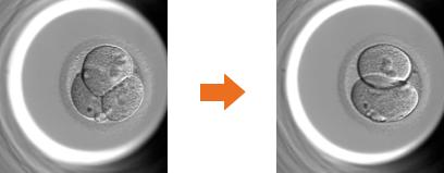 <異常な分割:リバース分割>一度分割した細胞が戻る