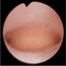 内 炎 子宮 膜